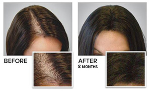 Follinique hair growth treatment